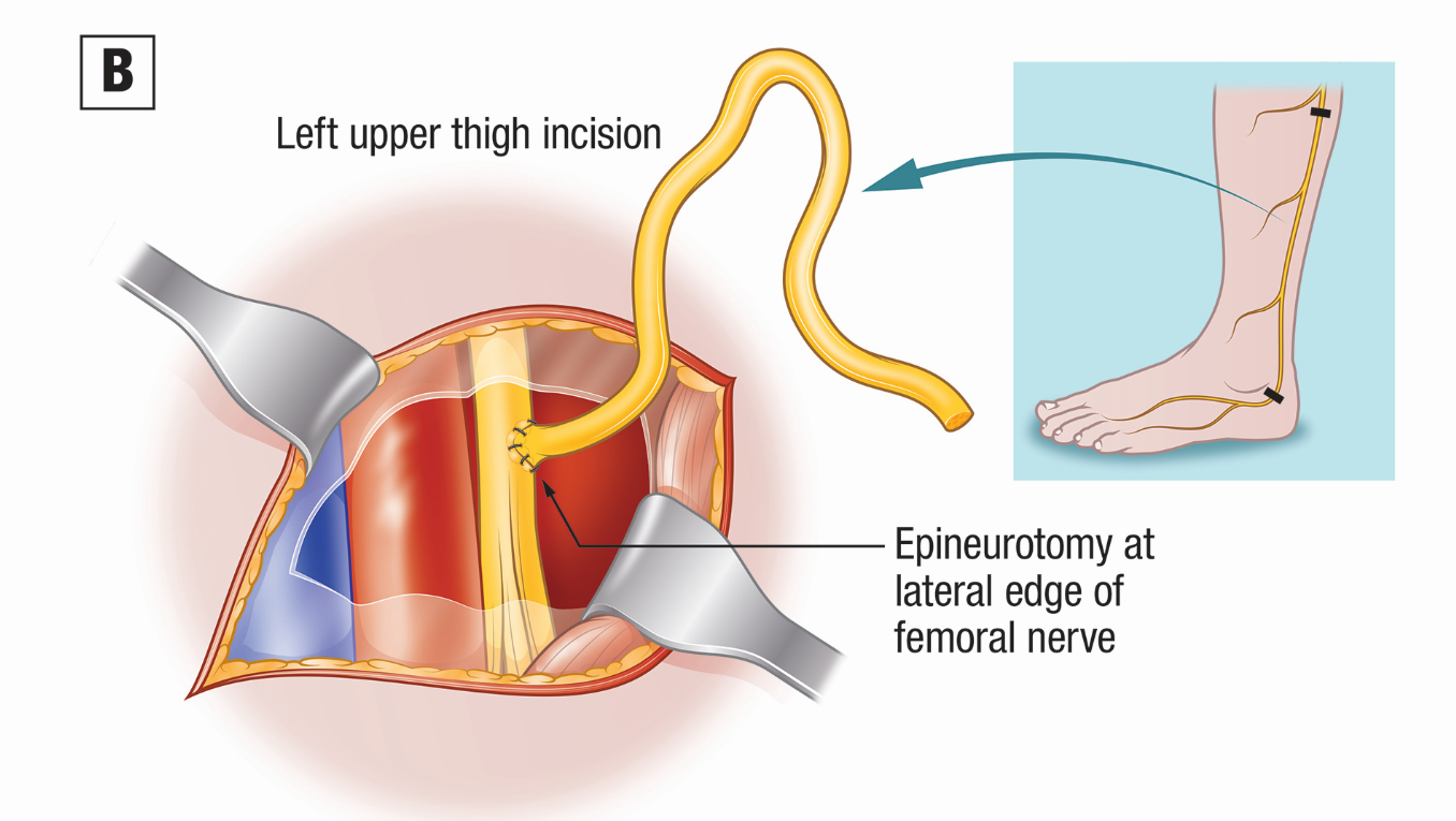 Nerve Grafting Procedure Restores Erectile Function After Surgery